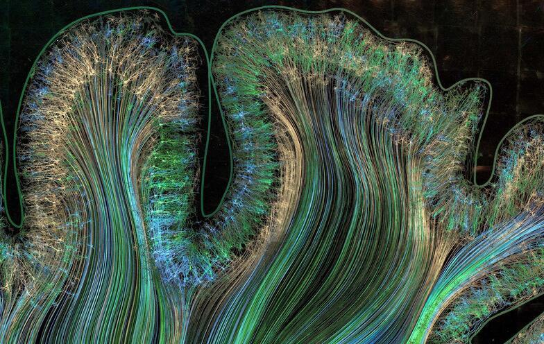 艺术家手绘脑神经 呈现完美视觉盛宴